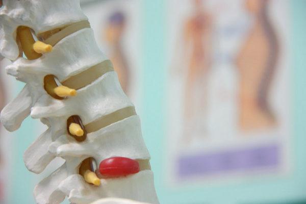 5-types-traitements-chiro