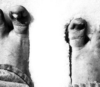 mains-pieds-froids-chiro-hull-gatineau-aylmer